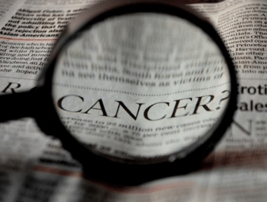 Santa Monica CA Dentist | Oral Cancer Screening Can Save Your Life